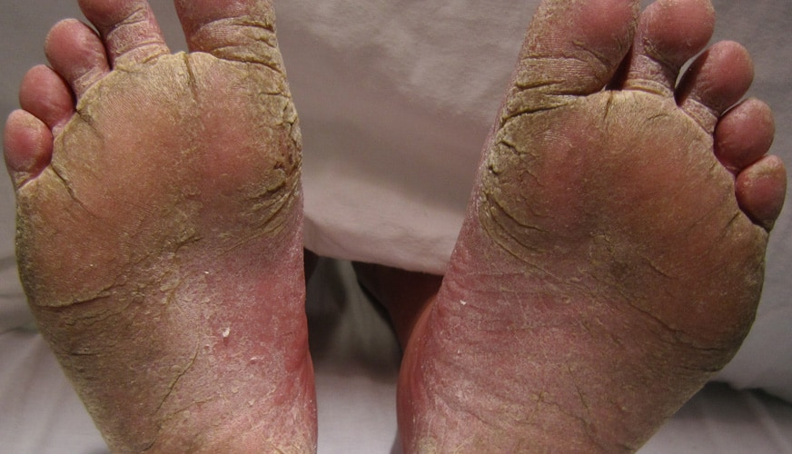 Fötterna är huvudsaken